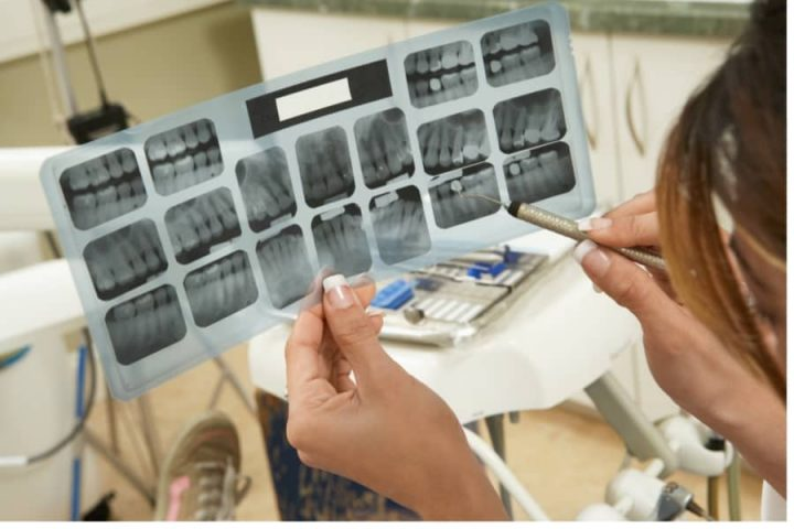 Dentist examining a patient's X-rays